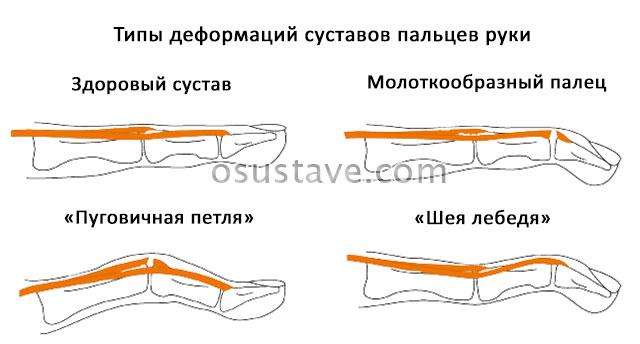 типы деформаций суставов пальцев