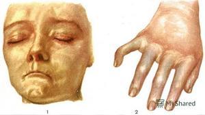 Виды дерматосклероза