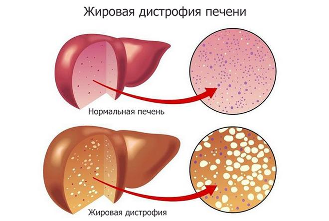 Липодистрофия у беременных и показатели АЛТ и АСТ