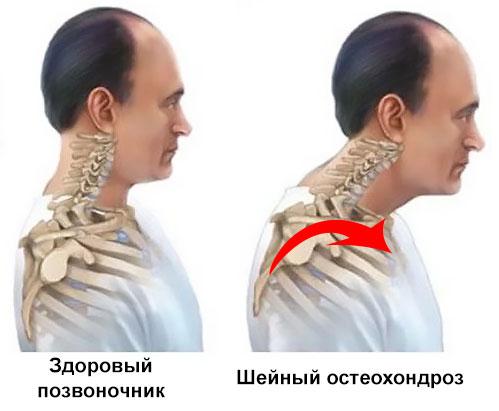 развитие остеохондроза, изменение внешнего вида шеи