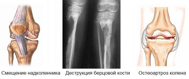 смещение надколенника, деструкция кости и остеоартроз колена