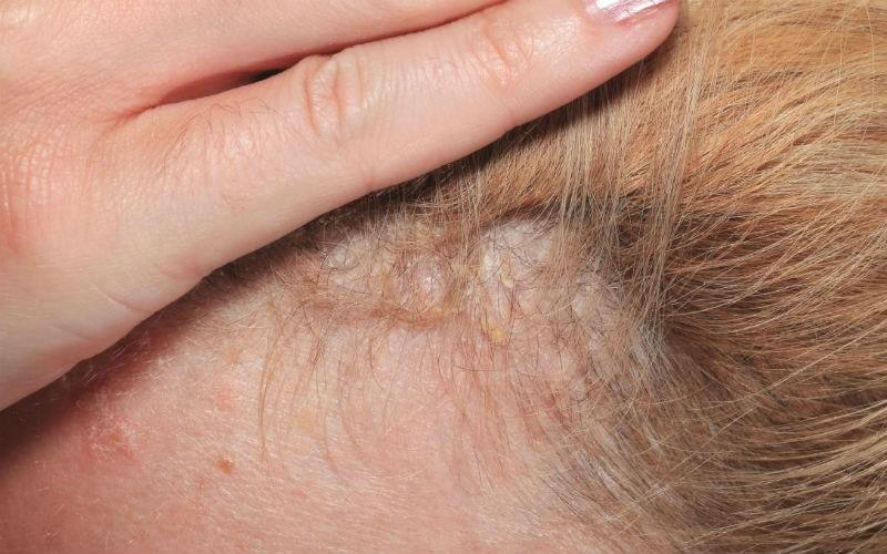 Как выглядит псориаз на волосистой части головы?