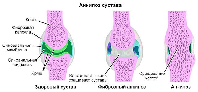 Упражнения для коленных суставов по Бубновскому в домашних условиях