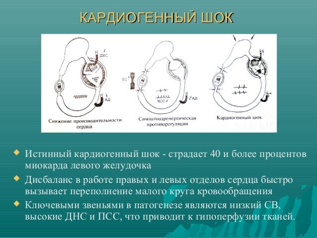 Наиболее тяжелое осложнение инфаркта, которое характеризуется острым нарушением гемодинамики