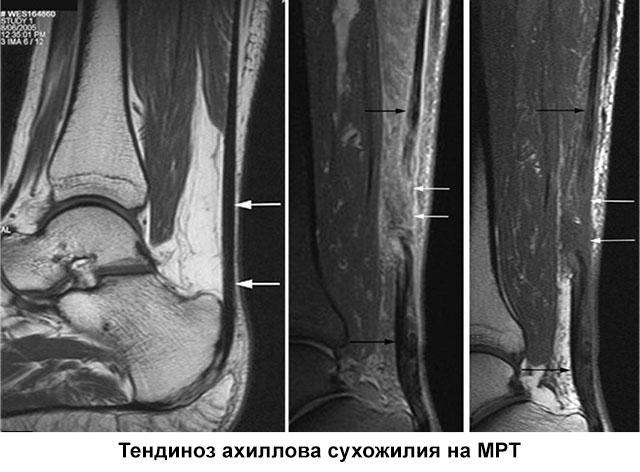 тендиноз ахиллова сухожилия на мрт