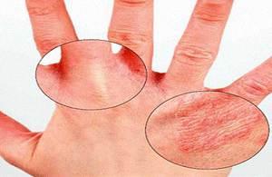 Лекарства для лечения дерматита