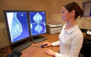 Стереотаксическая биопсия груди: как выполняется, процедура, риски, результаты, оборудование