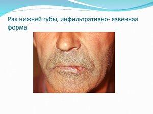 Патология губы