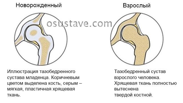тазобедренный сустав младенца и взрослого человека