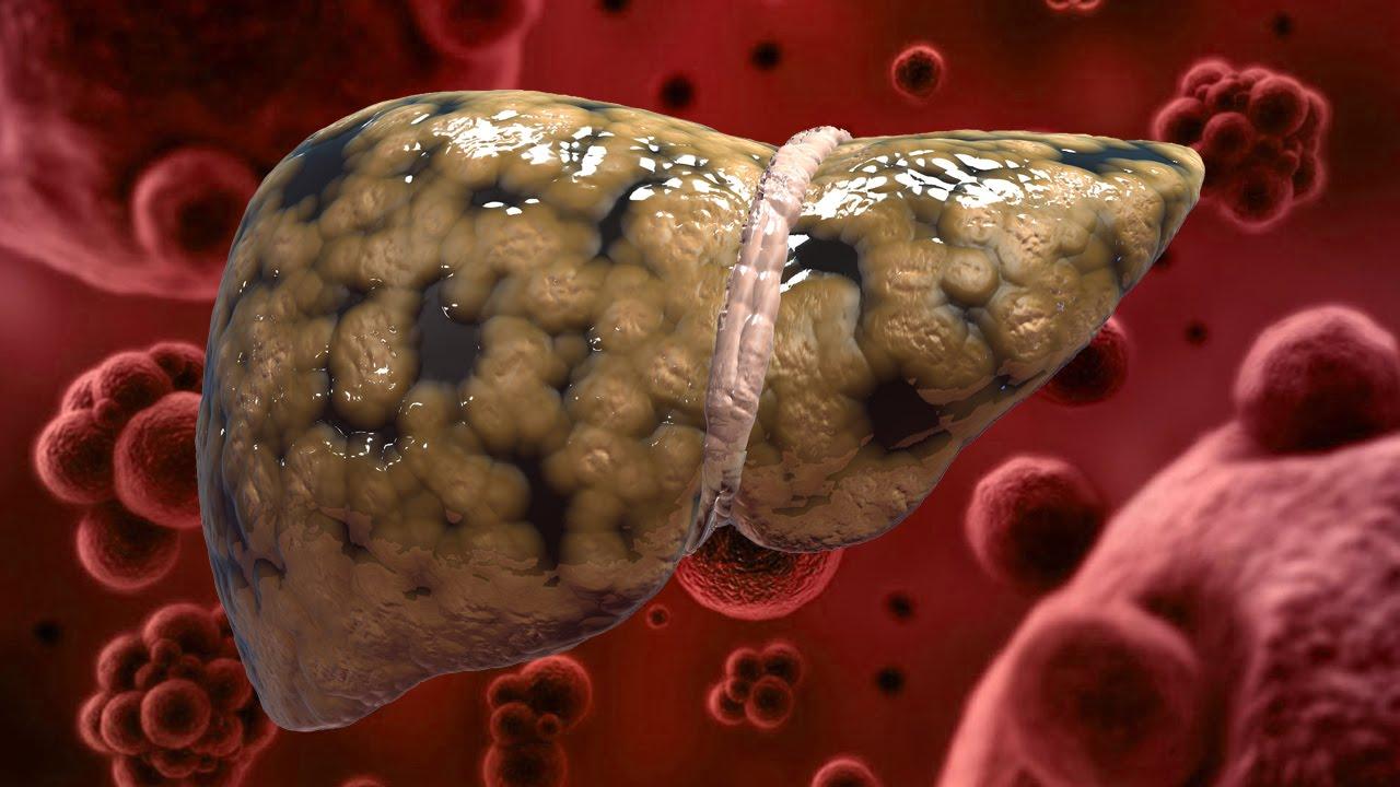 Стеатогепатоз что это такое