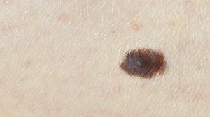 На коже коричневое пятно