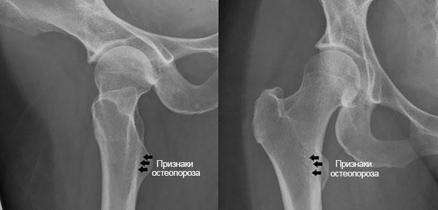 остеопороз на рентгеновском снимке