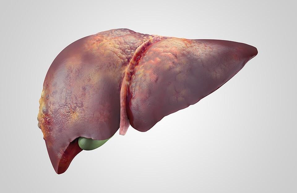 Почему появляются анэхогенные заболевания печени