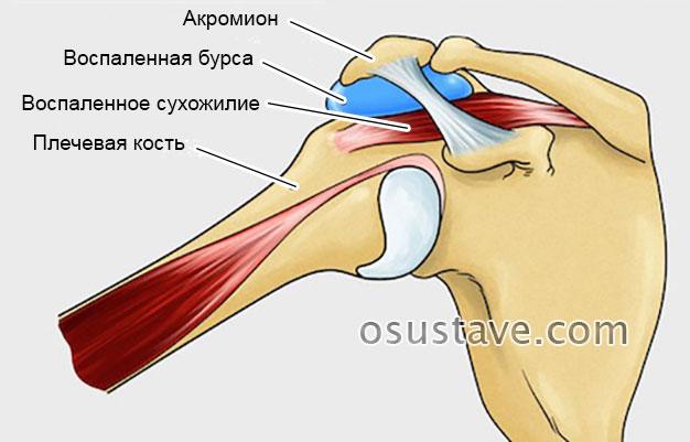 тендобурсит плечевого сустава