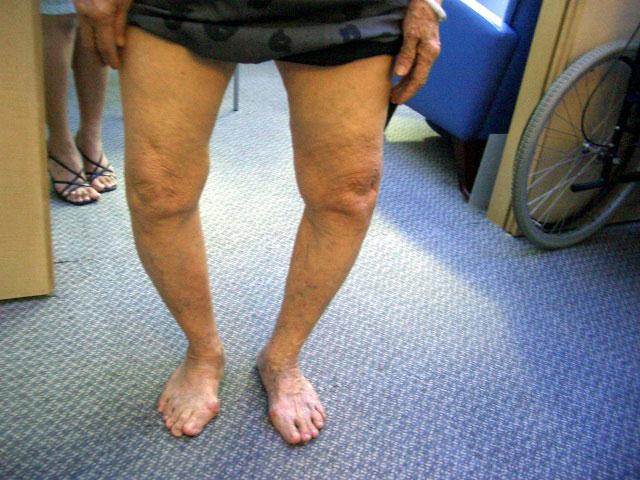 о-образное искривление ног