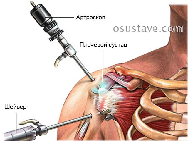 проведение артроскопии плечевого сустава