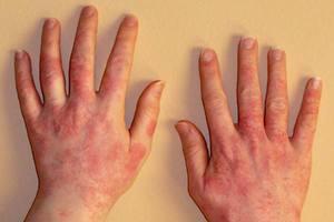 Аллергия на руках - способы лечения