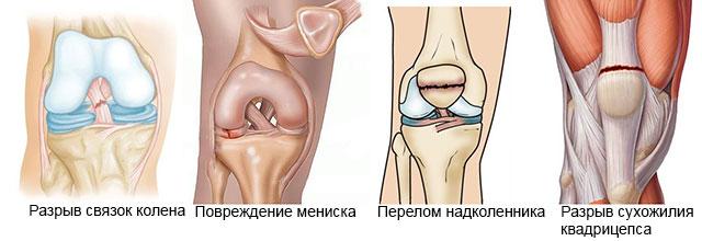 распространенные травмы колена
