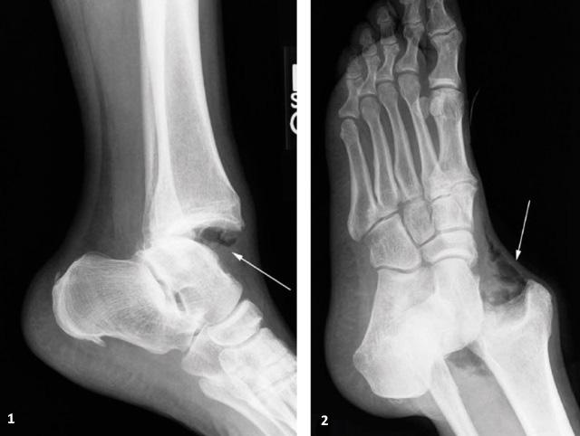 вывих лодыжки на рентгенограмме