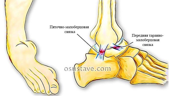 растяжение связок голеностопного сустава
