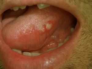 Болячки во рту и на языке