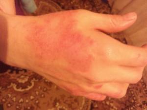 Как лечить пятна на руках