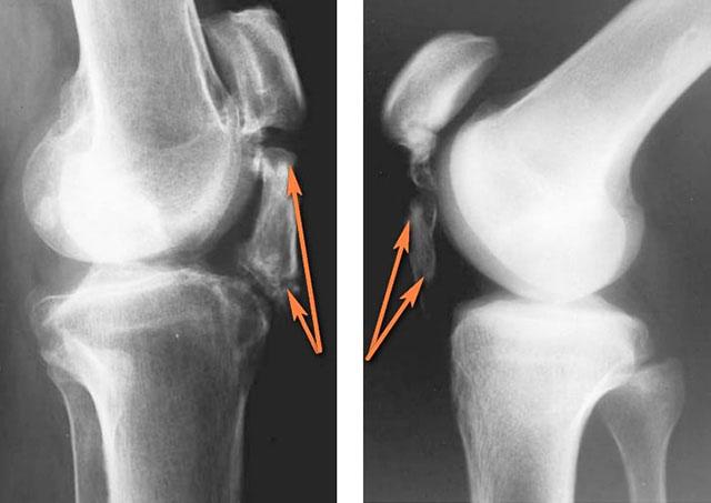 рентгеновский снимок коленного сустава с лигаментозом