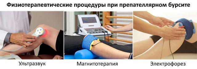 физиотерапия бурсита коленного сустава