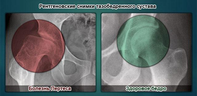 болезнь Пертеса на рентгенограмме