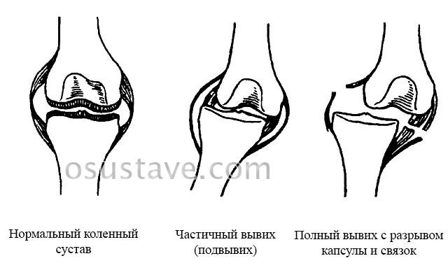 коленный сустав в норме, подвывих и вывих коленного сустава