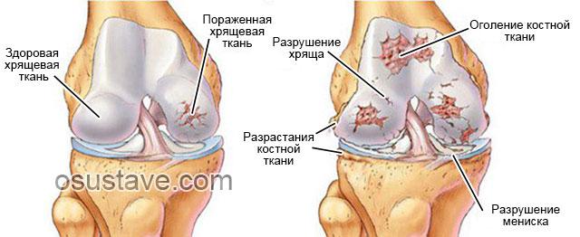 начальная и поздняя стадия артроза коленного сустава