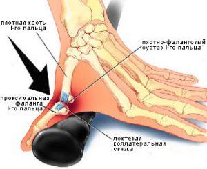 Растяжение большого пальца руки: симптомы, лечение и восстановление