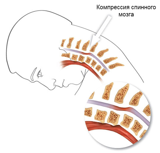 компрессия спинного мозга