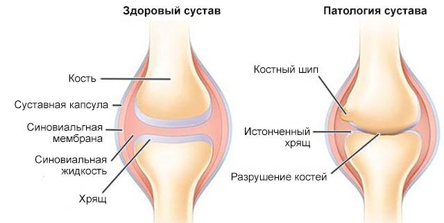 здоровый и больной сустав