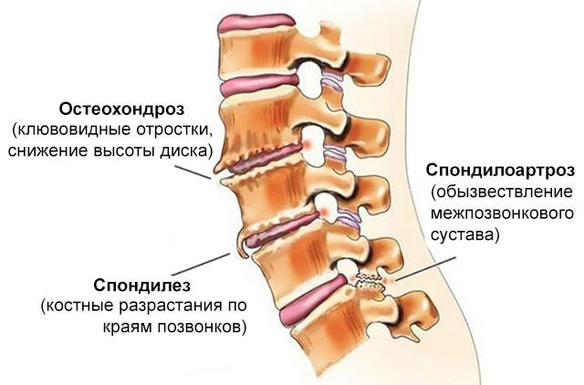 спондилез, спондилоартроз и остеохондроз в сравнении