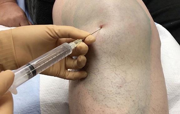 введение в капсулу коленного сустава сустава препарата гиалуроновой кислоты
