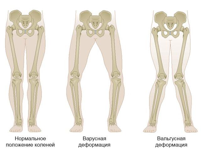 варусная и вальгусная деформация коленных суставов