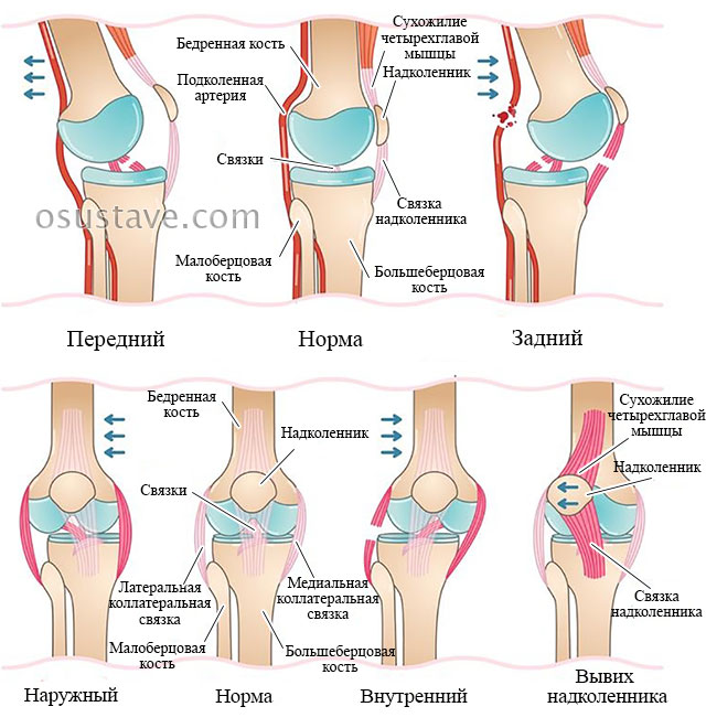 классификация вывихов коленного сустава