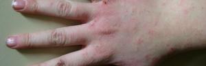 Аллергия на руках: виды