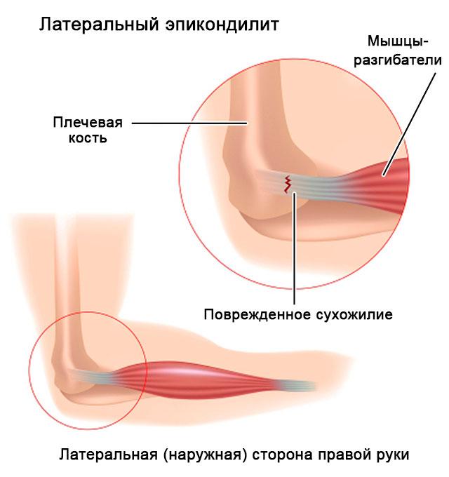 латеральный эпикондилит