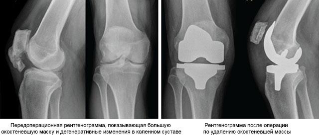 результат операции по удалению окостенения коленного сустава
