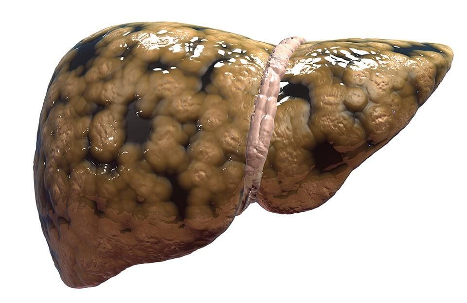 Жирная печень симптомы