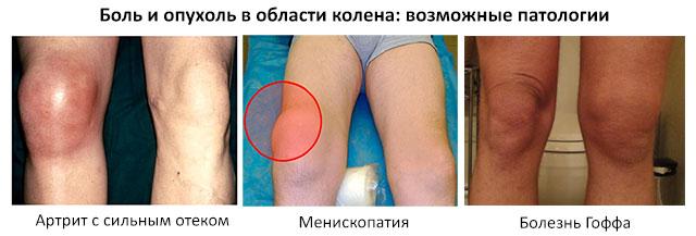 возможные патологии, при которых опухает колено