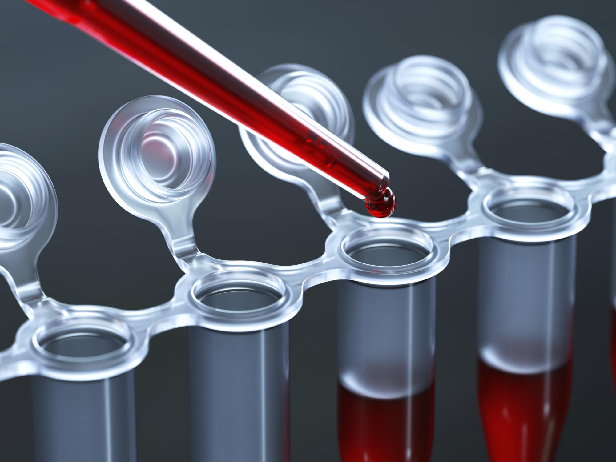 Результаты анализов на маркеры гепатита