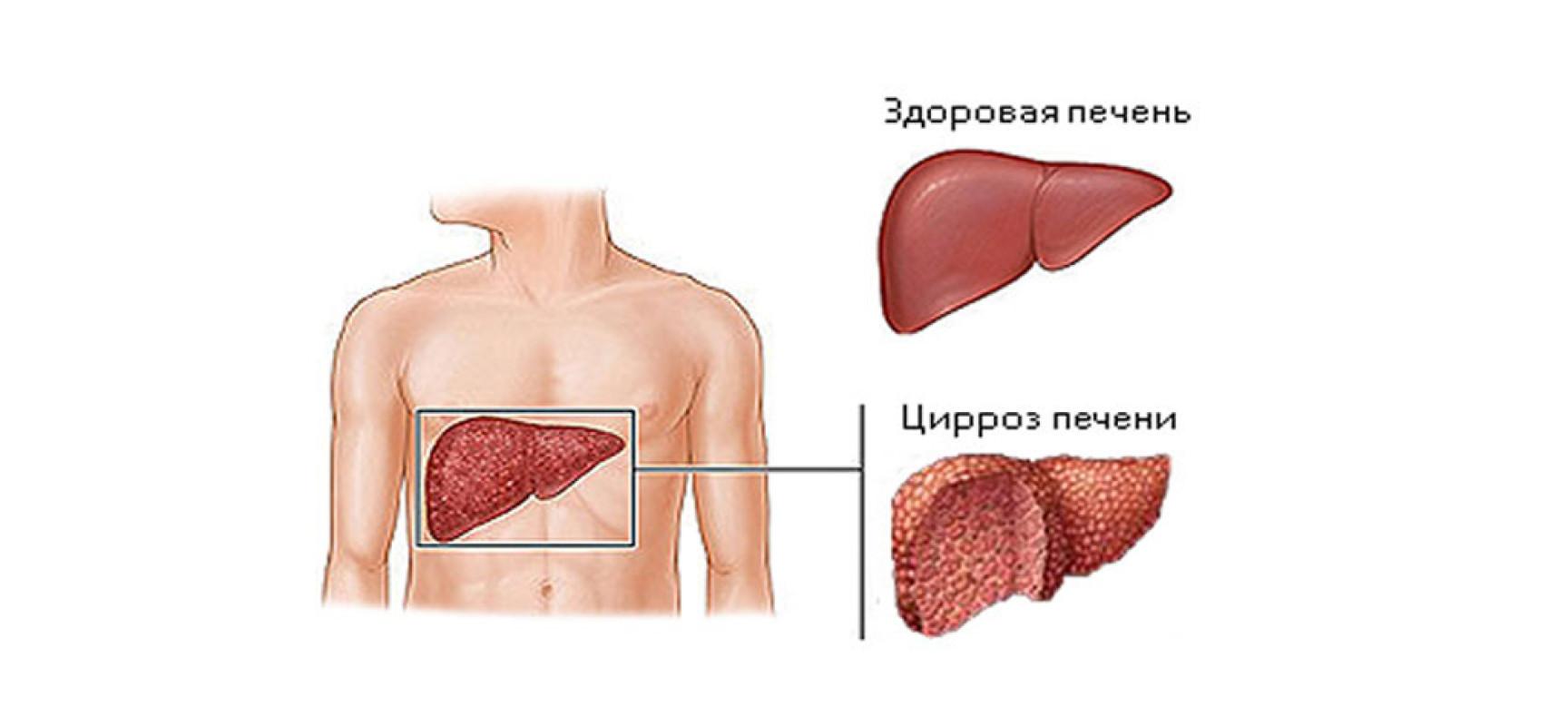 Цирроз печени при злоупотреблении алкоголем