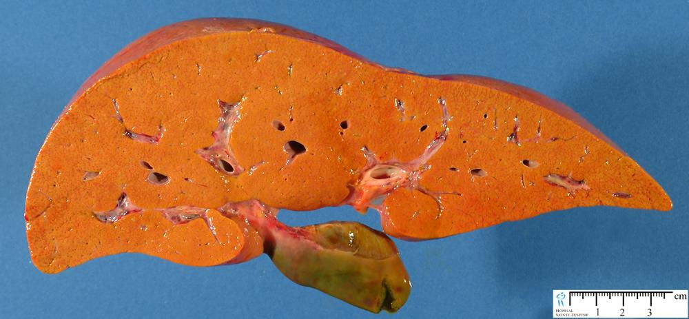 Фокальный стеатоз печени