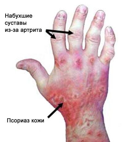 псориаз кожи и псориатический артрит