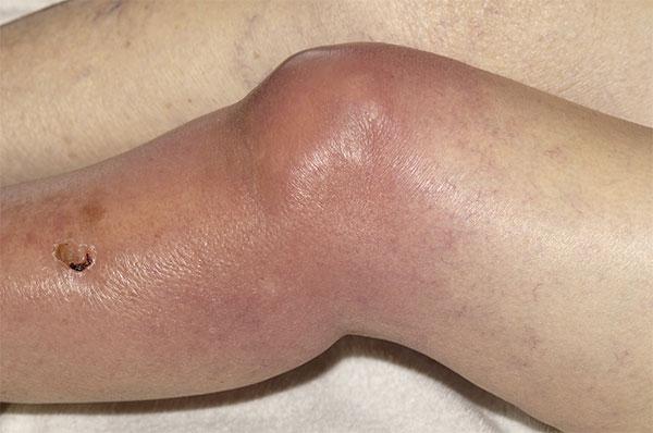 отек и гнойное расплавление тканей коленного сустава
