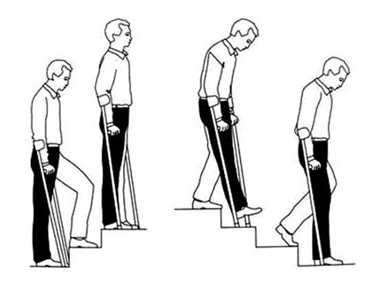 укрепление мышц ноги после эндопротезирования