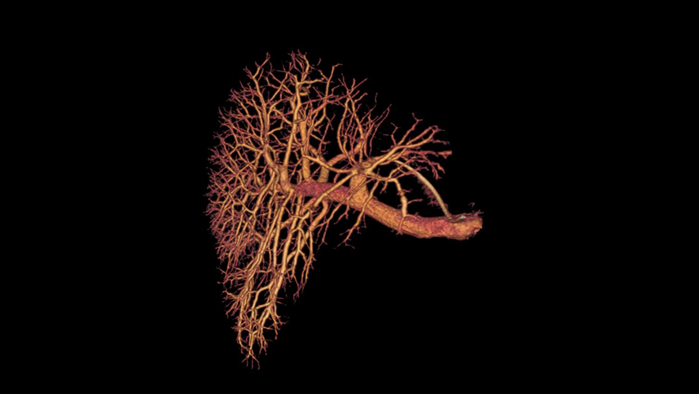 Гнойное воспаление воротной вены
